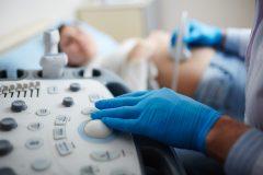 ¿En qué semana se producen más abortos?