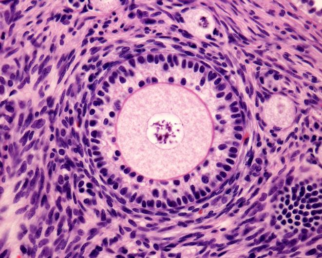 estimulacion ovarica consejos
