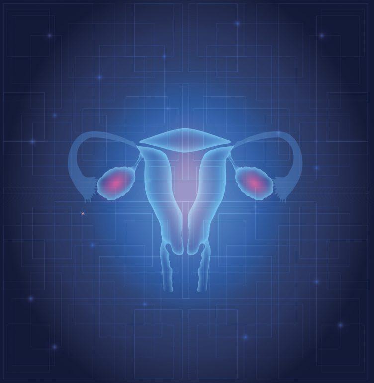 endometrio inflamado