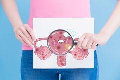 Endometritis crónica: una barrera para el éxito de la reproducción asistida